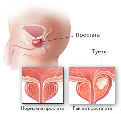 rak-na-prostatata.jpg