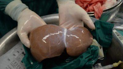 Научниците чекор поблиску до пресадувањето свински органи кај луѓето