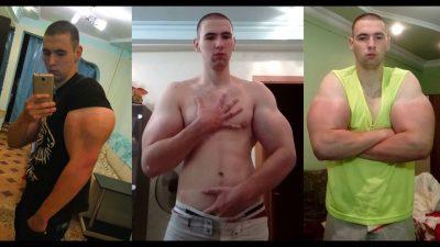 ВИДЕО: На рускиот Попај му се заканува ампутација на раката поради вбризгување опасни хемикалии (ВИДЕО)