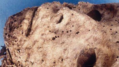 ДНК анализа на мумија од 16 век откри постоење на HBV вирусот