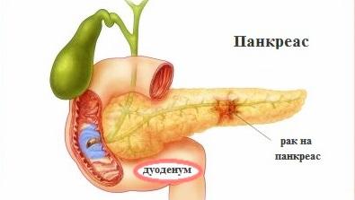 pancreas-cancer-14160.jpg