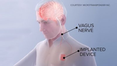 ВИДЕО: Научниците направија имплант за закрепнување …