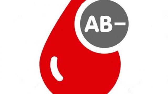 transfuzija-jzu-skopje.jpg