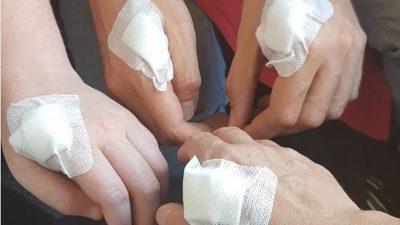 Швеѓаните вградуваат микрочипови во рацете бидејќи сакаат да се ослободат од кредитните картички и клучеви