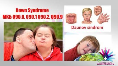 Ги запознаваме ретките болести: Даунов синдром