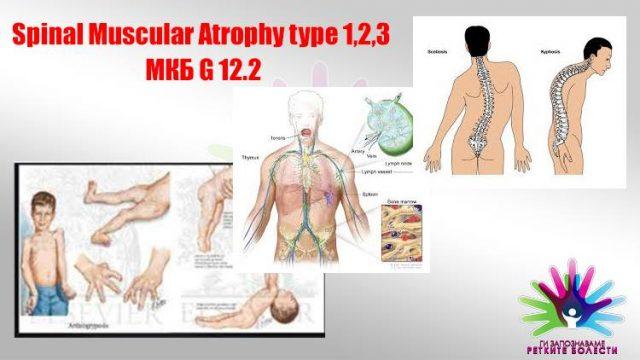 muskuln-atrofija.jpg