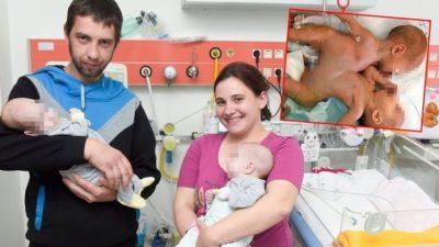 Хирурзи прв пат успешно раздвоија сијамски близначки (ВИДЕО)