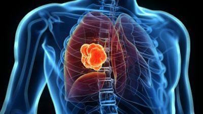 Загудвањето на воздухот може да го оштети секој орган во телото