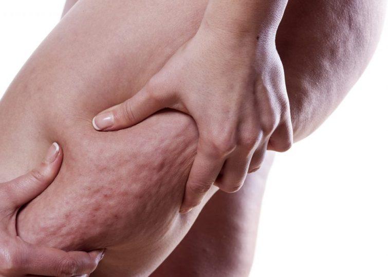 Otkrivame-s-za-celulitot-Ne-troshete-bogatstvo-na-tretmani-samo-vaka-mozete-da-go-otstranite.jpg