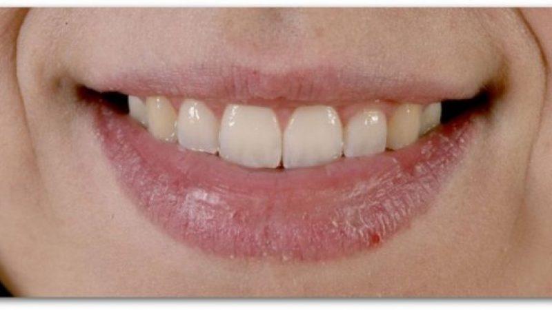 Што откриваат испуканите усни за вашето здравје?